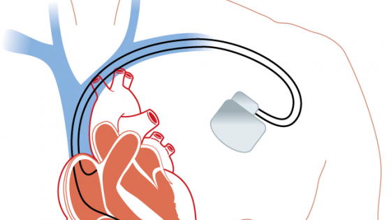 New cardiac MRI process can improve results, ease